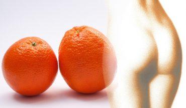 Combattere la cellulite? I consigli degli esperti